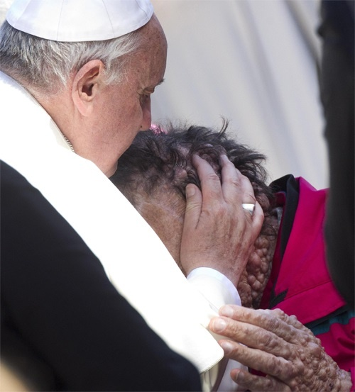 Pope and_man_suffering_from_boils_in_Saint_Peters